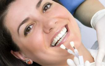 Виниры на зубы