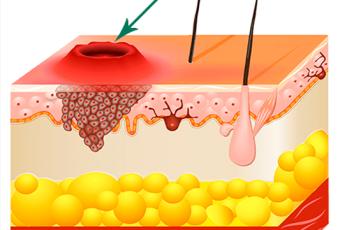 Заболевание кожи папиллома — это опасно?
